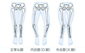 o_legs_x_legs-500x310